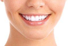 Аппаратное отбеливание зубов до 10 оттенков в Киеве