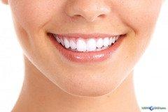 Профессиональное аппаратное отбеливание зубов в Киеве